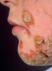 стрептодермия болезнь фото