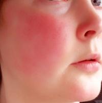 Как лечить купероз на лице и можно ли от него избавиться?