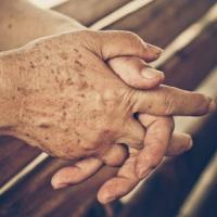 Темные пятна на руке – изменения кожи с возрастом