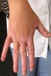 Белые пятна на коже – симптом витилиго