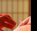 Акупунктура против приливов: эффективная альтернатива традиционной медицине