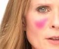 Симптомы кожного клеща на лице: как паразит влияет на состояние здоровье
