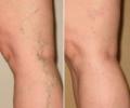 Лечение сосудистых звездочек на ногах: не стоит забывать о профилактике
