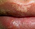Белые точки на губе: причины их появления и лечение
