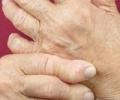 Артрит: лечение народными средствами в современных условиях