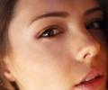 Пигментные пятна на лице: что это такое и как с ними бороться