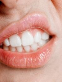 причина желтизны зубов